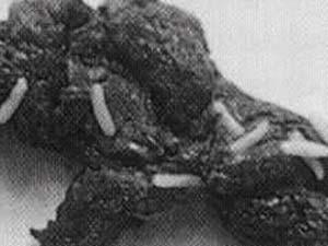 Was wenn in der Fäkalie beim Menschen die Würmer zu machen